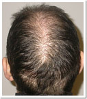 réduction tonsure scalp reduction
